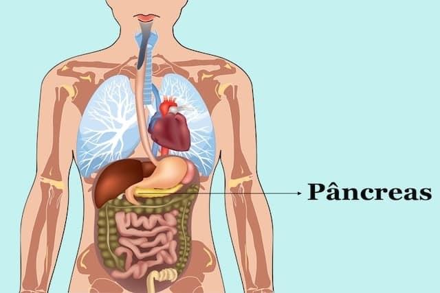 tratamento do câncer de pâncreas